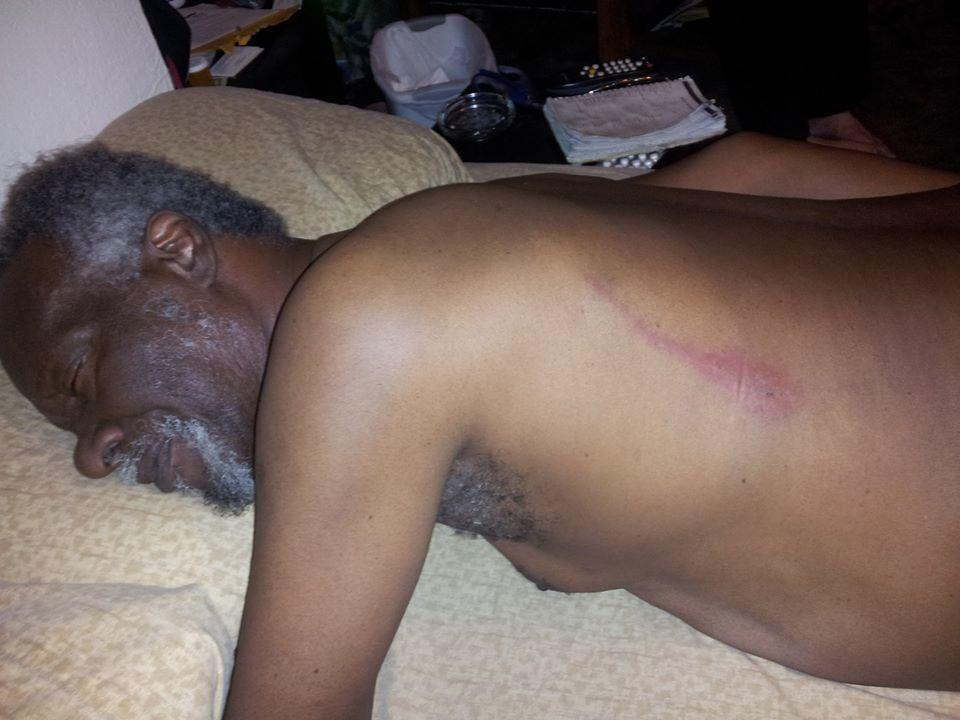 Lester Chambers' injuries following the assault, posted by his son Dylan